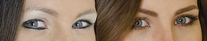 Eye Common Beauty Blunders by MaskCara